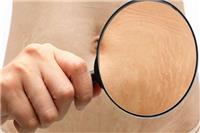 老公嫌弃肚子妊娠纹怎么办(妊娠纹)妊娠纹的预防和祛除手段「预防」