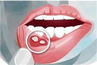 口腔溃疡吃什么好的快,口腔上火长泡需要吃这六种食物