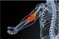 网球肘最佳治疗方法,这五个方法减少手肘疼痛感