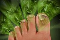 脚气的治疗方法有哪些  9种有效治疗脚气的民间土方法大全
