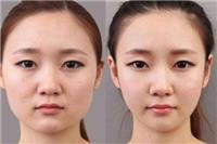 脸水肿怎么办什么原因引起的 做好这4项快速消肿