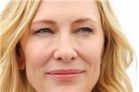眼角纹和笑纹的区别是什么 脸上有眼角纹笑纹怎么办如何去除